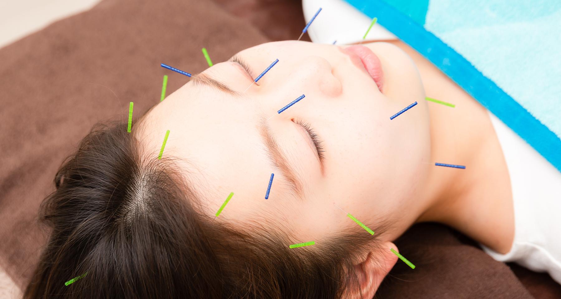 Acupuncture<br><small><small><small><b>~鍼灸施術~</b></small></small></small>